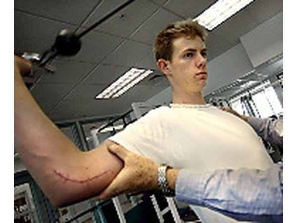 Un lanzador rehabing de una cirugía Tommy John