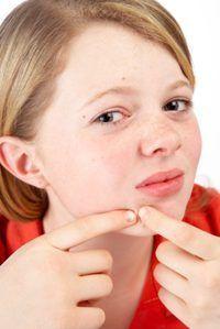En las mujeres, la piel grasa a menudo se produce junto con los desequilibrios hormonales.