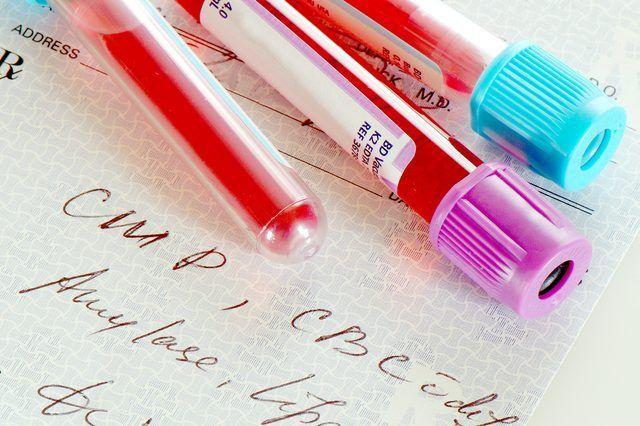 Cómo leer los resultados de laboratorio de sangre