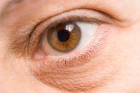 Formas naturales para los hombres para fijar bolsas bajo los ojos