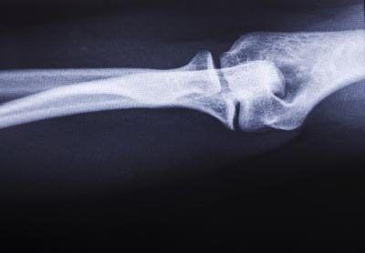 De rayos X de los huesos largos.