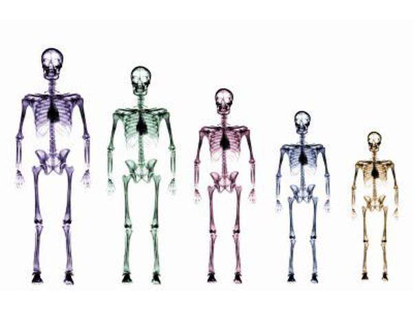 Diferentes esqueletos de tamaño.