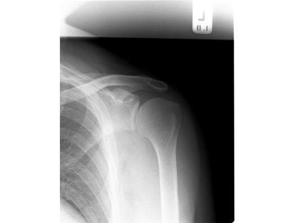 De rayos X que muestra los huesos.